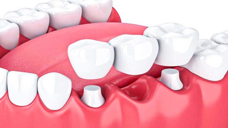 Dental Bridges; FDC